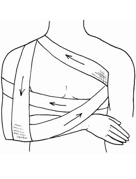 картинки наложение повязки дезодорант сочетании пронзительно